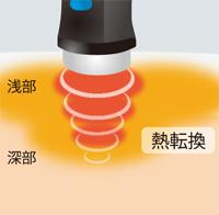 深部の患部も直接温める立体加温